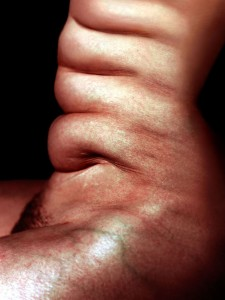 stomach1_1
